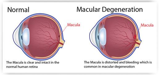 Macular Degeneration Eye Exams Optometrists Oxford