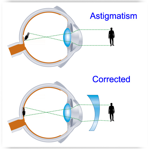 astigmatism - eye exams | optometrists |oxford and henderson nc, Skeleton