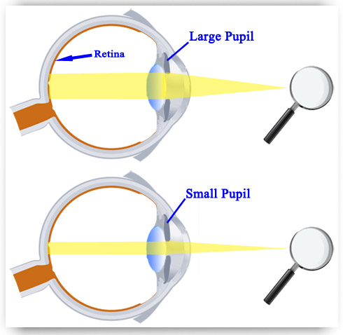 Dilated Pupil Explanation