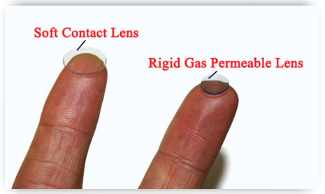 rigid gas permeable lens and a soft contact lens side by side - keratoconus contact lens fitting