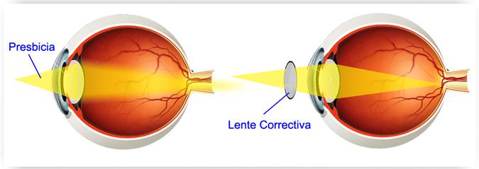 cómo funciona una lente correctiva